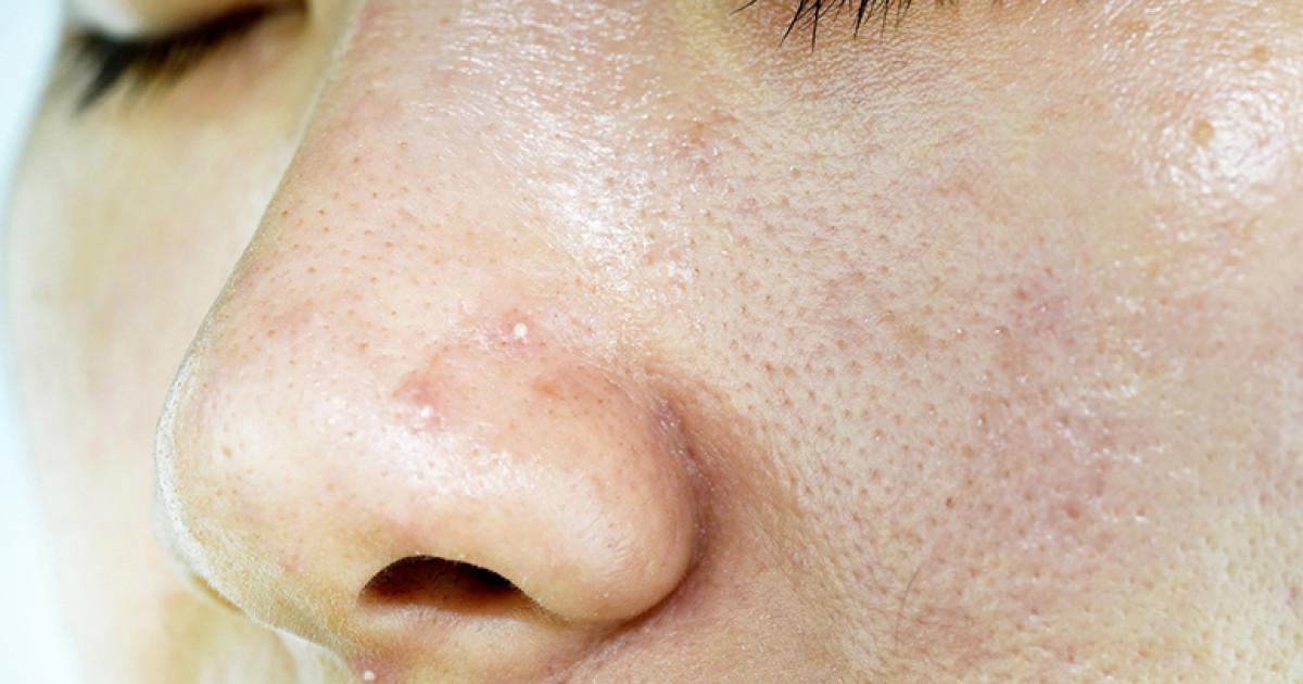 4 dicas para controlar a oleosidade da pele durante o verão